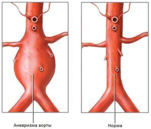Реабилитация после аневризмы аорты