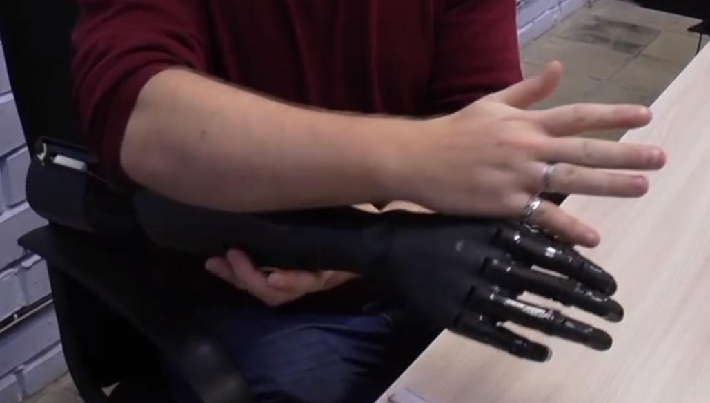 В Тольятти начали производить протезы пальцев руки