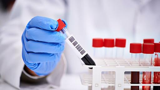 В Самарской области коронавирусом заразились 46 человек, один умер