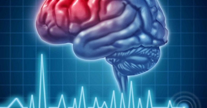 Ученые определили ранние признаки инсульта