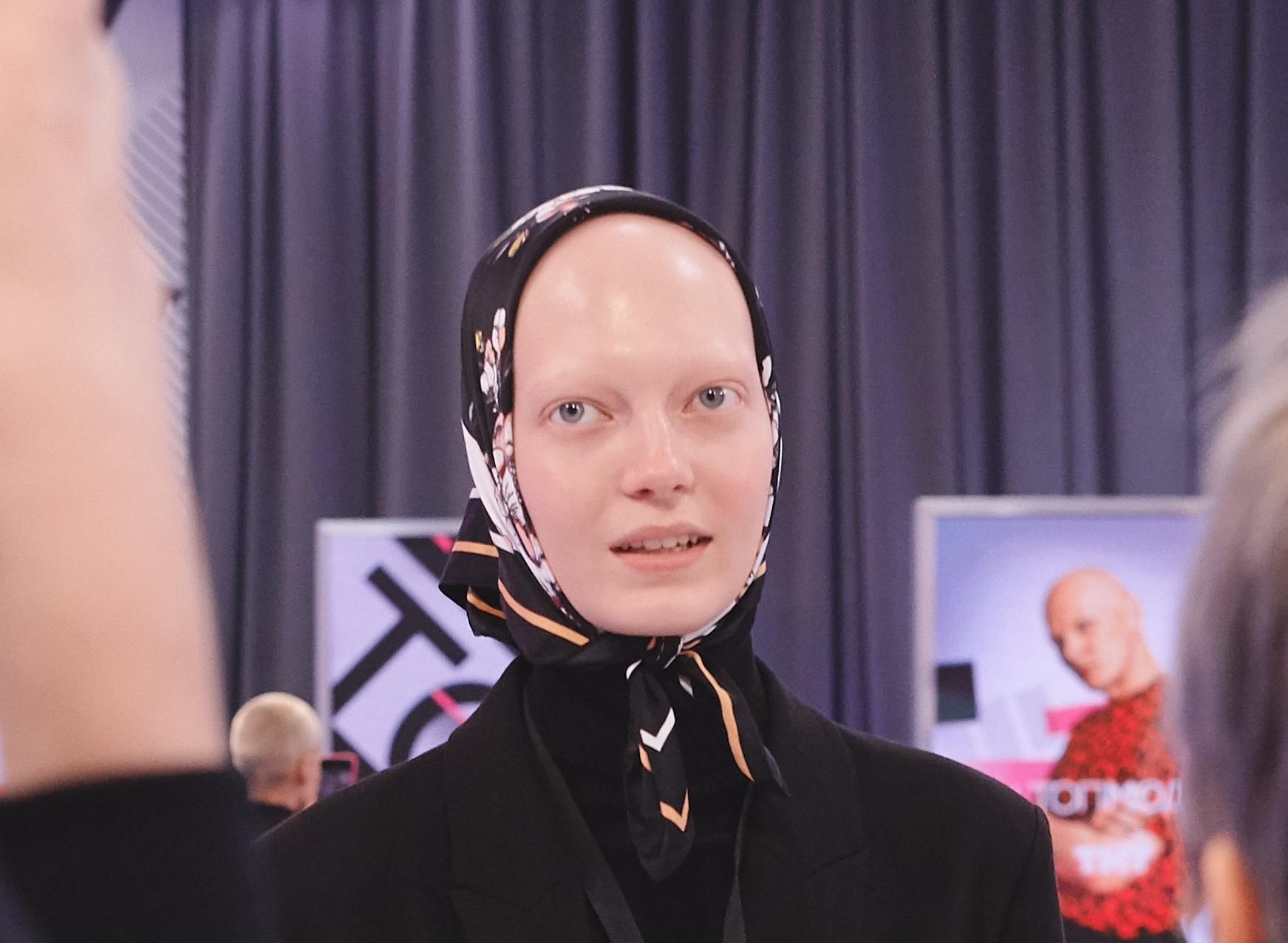 Девушка с алопецией из Тольятти станет участницей проекта «ТЫ_Топ-модель на ТНТ»